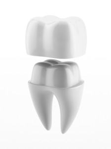 Artistry And Materials Are Among Factors That Determine Dental Crown Quality