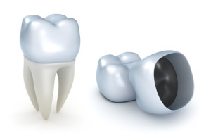 Tips For Better Understanding About Dental Crowns