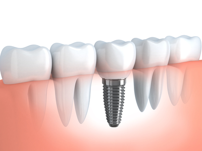 Dental Implant Alignment
