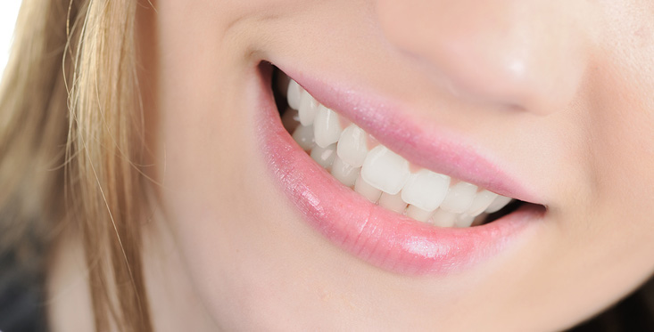 fixed tooth - veneers